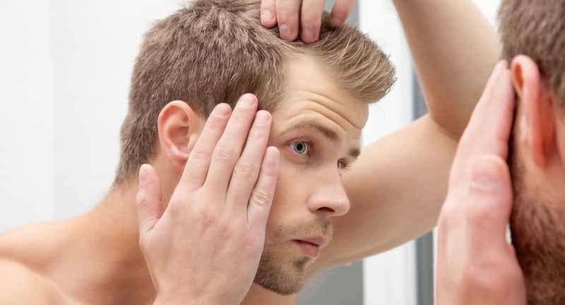 baldness kapak