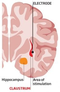 Beyin derinliğinde bulunan Klostrum algılarınızı tutarlı bir bütün haline getirebilir.
