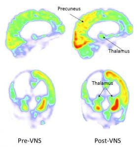 before-and-after-vns-brain-scans-activity