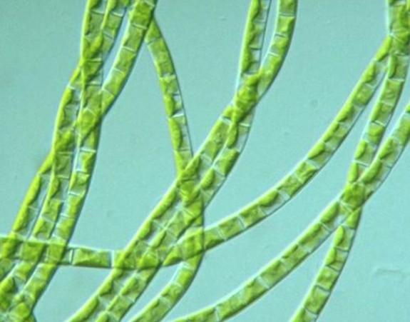 Bir yeşil alg olan Klebsormidium flaccidum ve kloroplastlı yapısı