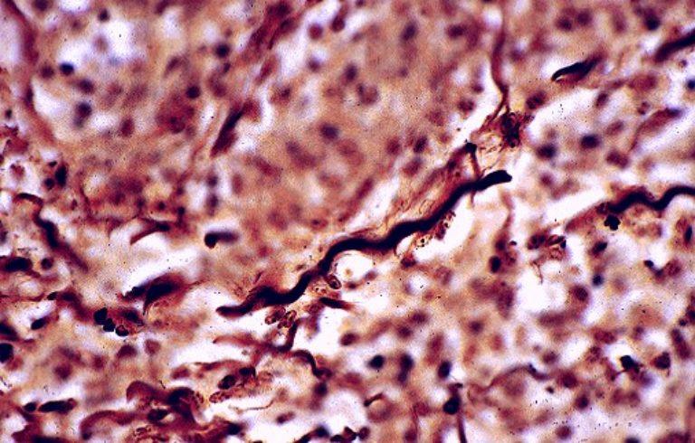 Photo of Lyme Bakterilerinin İlginç Bölünme Yöntemi